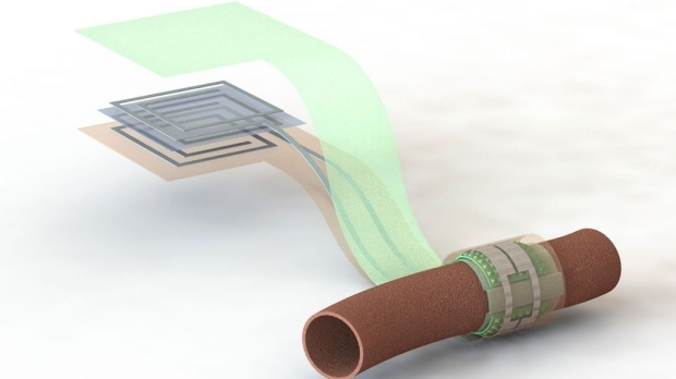 Stanford engineers and medical researchers create wireless, battery-free, biodegradable blood flow sensor